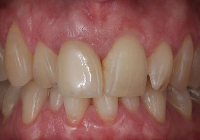 after-case-dentistry-esthetics