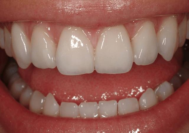 biomimetic dentsitry