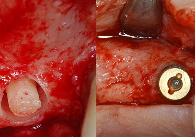 soft-tissue-management-autogenous-bone